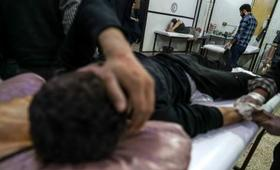 Injured person in hospital, Syria