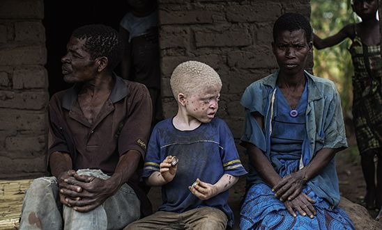 The ritual murders of people with albinism in Malawi | Amnesty