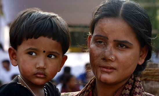 Acid attack survivor with her child in Bangladesh, 2010
