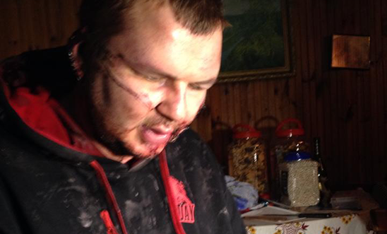 Ukraine protestor Dmitrii Bulatov was abducted and tortured