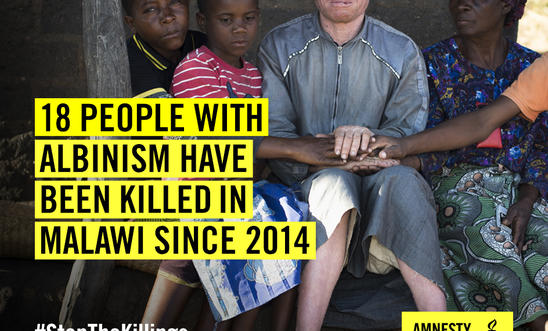 18 people with albinism have been killed in Malawi since 2014