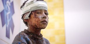 A wounded Syrian child at a field hospital in Eastern Ghouta