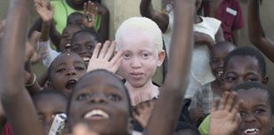 A picture of Annie Alfred at school - taken in Malawi. This photo is part of the Malawi campaign to stop the killings of people with albinism in Malawi.