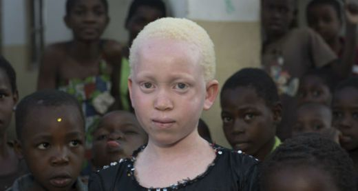 Annie Alfred was born with albinism
